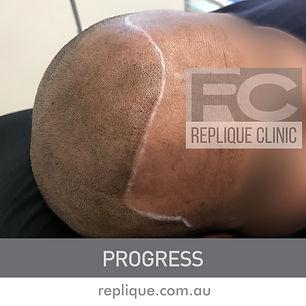Hair tattoo Brisbane