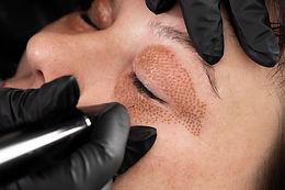 Women eyelid lifting, fibroblast procedu