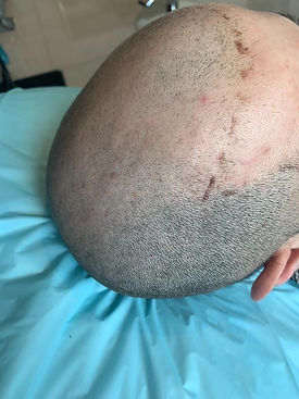 Scalp Micropigmentation near me Sydney P