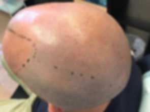 Baldness Cure Bribane