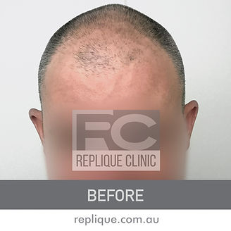 Hair tattoo Brisbane Before and After