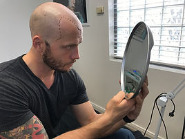 Scalp micropigmentation, Hair loss, hair tattoo Brisbane.