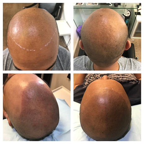 Hair Tattoo for baldness