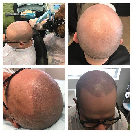 Hair replication