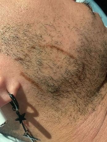 Beard Bald Patch Solution Sydney LR.jpg