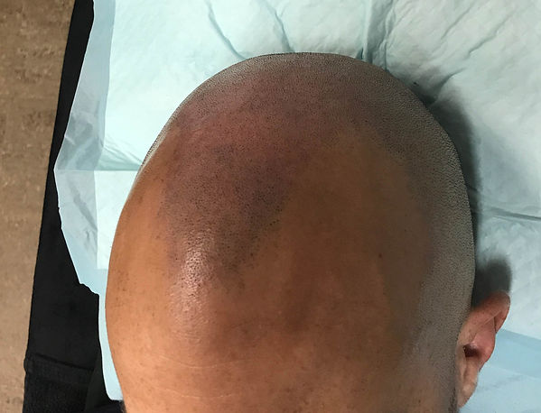 Hair Transplant Alternative Brisbane
