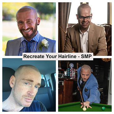 SMP Recreate Your Hairline.jpg