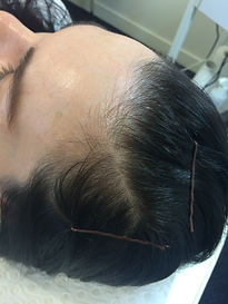 Scalp Micropigmentation Brisbane. Treats thinning hair in both women and men.