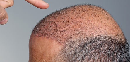 hairreplacementaustralia.com hair transplant surgery as a hair loss option
