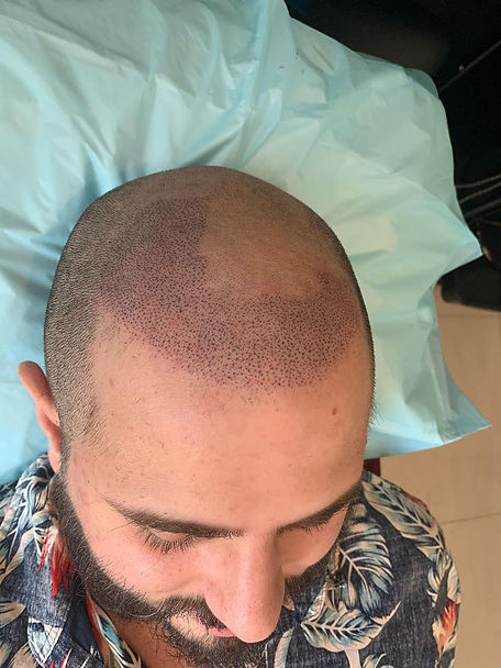 Scalp Micropigmentation Sydney Best Trea