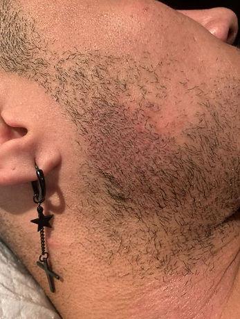 Beard Fill In Micro Blading Sydney LR.jp