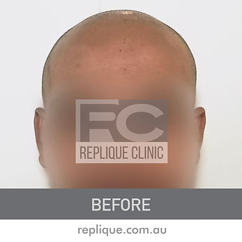 Scalp Micropigmentation Brisbane Before and after