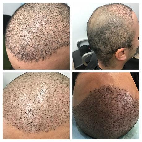 Scalp Micropigmentation Results