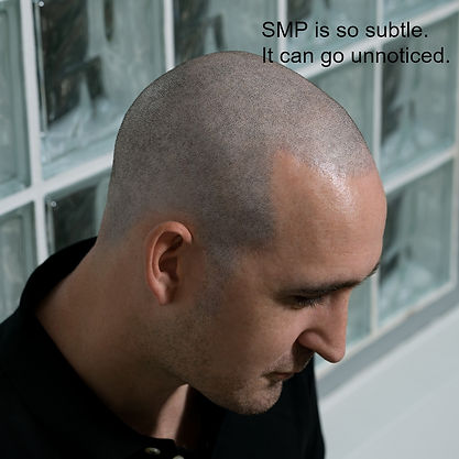 Scalp Micropigmentation Looks Real
