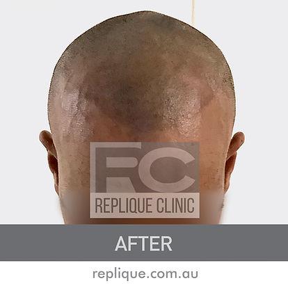 Hair loss solutions Brisbane Hair tattoo