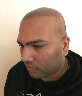 Scalp Micropigmentation Queensland.jpeg
