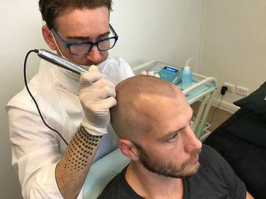 Scalp Micropigmentation in Brisbane