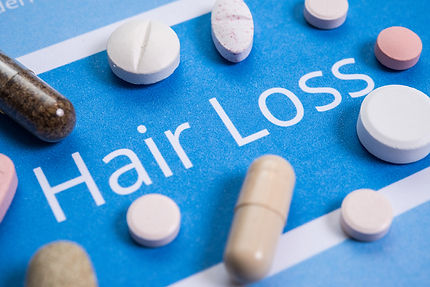 hairreplacementaustralia.com medication as a hair loss option