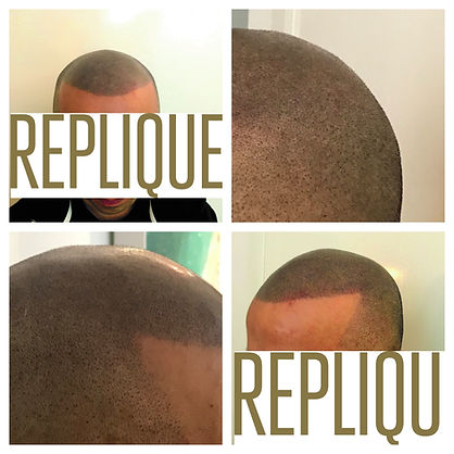 Hair Replicaton Technique