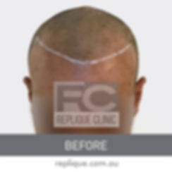 Hair loss solutions Brisbane Hair tattoo