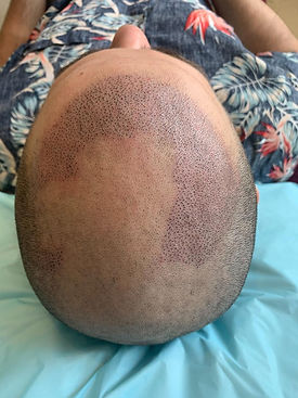 Best Scalp Micropigmentation Sydney Affo