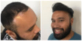 HP - Before & After.jpg