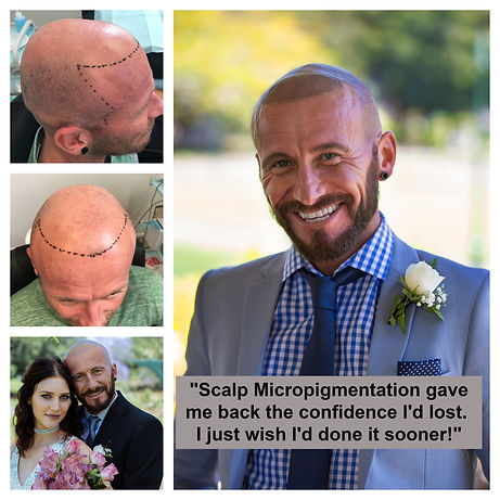 Recreate Your Hairline