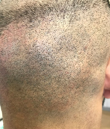 Scalp Micropigmentaion for Scars
