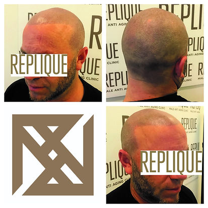 Recreate Hairline