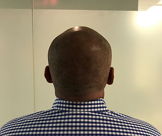 hairreplacementaustralia.com scalp micropigmentation as a hair loss option