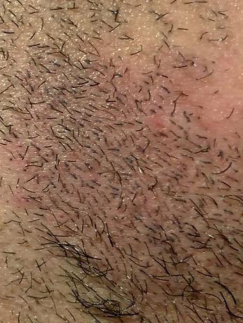 Beard Tattoo Sydney LR.jpg