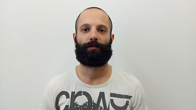 Hair replacement, hair loss Brisbane