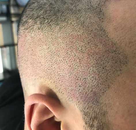 Hair Transplant Scar Camouflage Options
