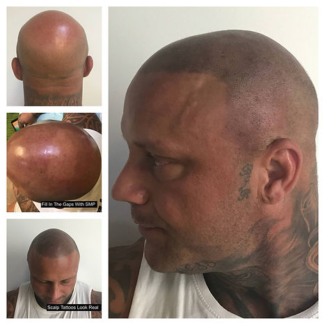 Scalp Tattoos Are Easy