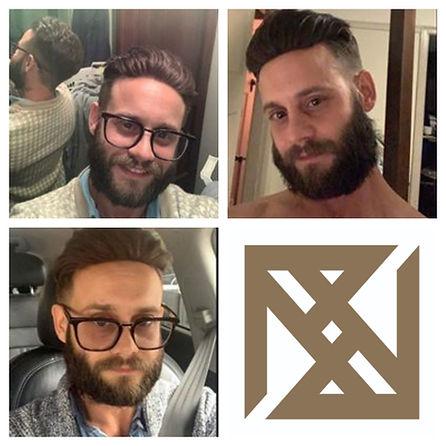 Mens Hair Loss Clinic