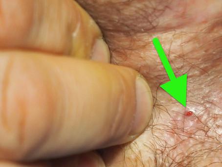 Αποτελεσματική θεραπεία Διασφιγκτηριακού Συριγγίου