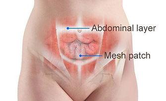 Incisional-hernia-repair-mesh (1).jpg