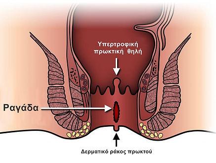 υπερτροφικές πρωκτικές θηλές (2).jpg