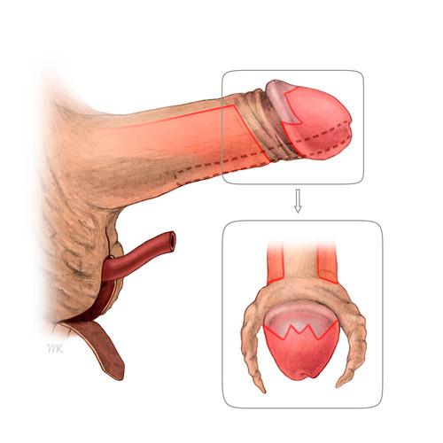 Präparierung Eichel für Neoklitoris
