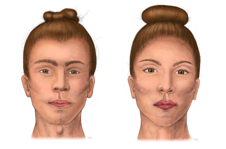 Gesichtsfeminisierung