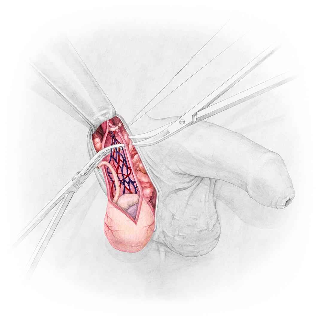 Orchiektomie (Hodenentfernung)