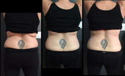 Back Before & After 5 Treatments