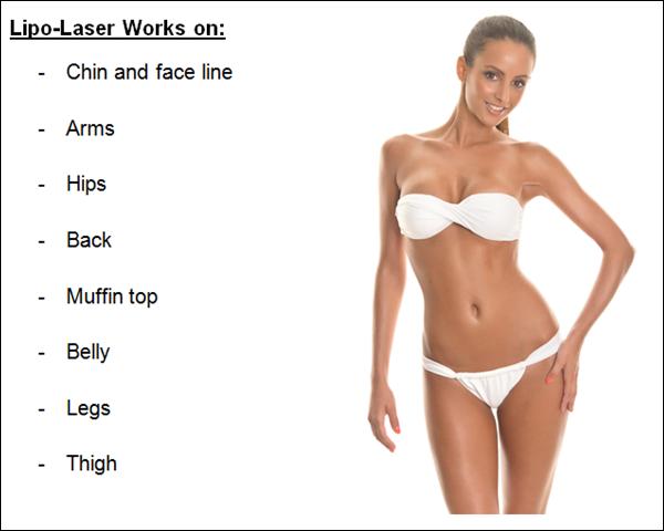 Lipo Laser Locations