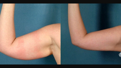 Arms Before & After