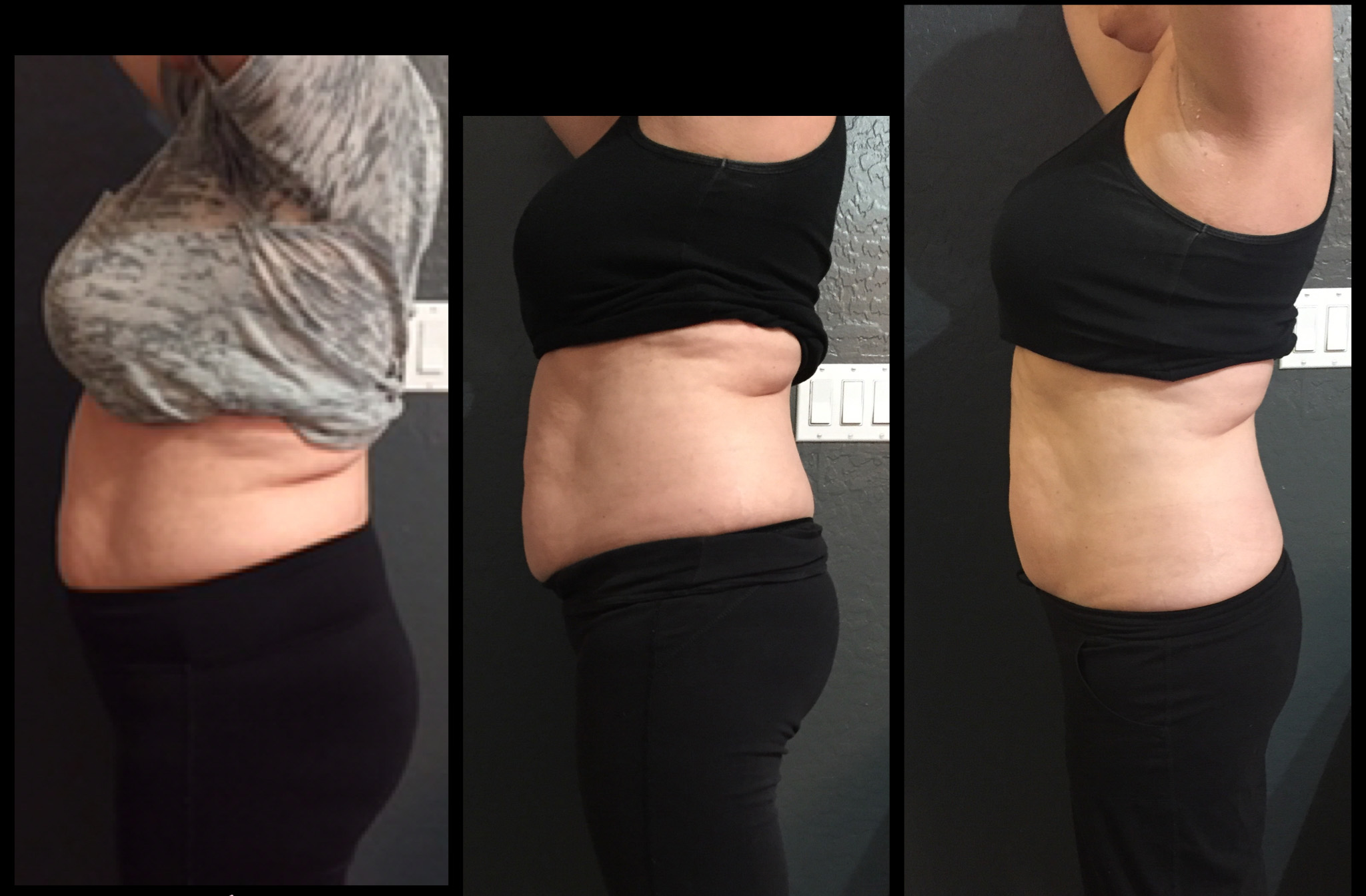 Before & After 5 Treatments2