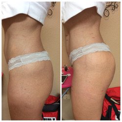 Booty Lift Before & After