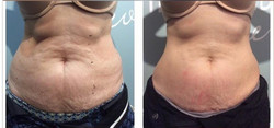 Before & After 3 Treatments2