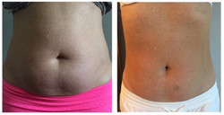 Tummy Before & After 4 Treatments