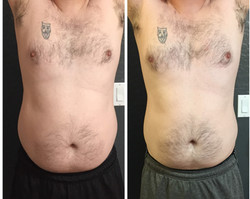 Man Before & After 4 Treatments