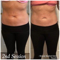Lori Before & After 2 Treatments